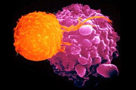 Tumori, scoperto il meccanismo che li fa morire di fame