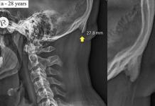 Testa da smartphone, scoperta nei giovani una nuova escrescenza alla base del cranio